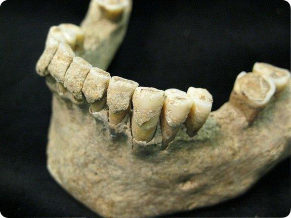 dientes Siete días ... 24 de febrero a 2 de marzo